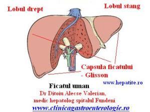 artroza tratamentului blocajului articulației umărului sinovita articulației tratamentului degetelor