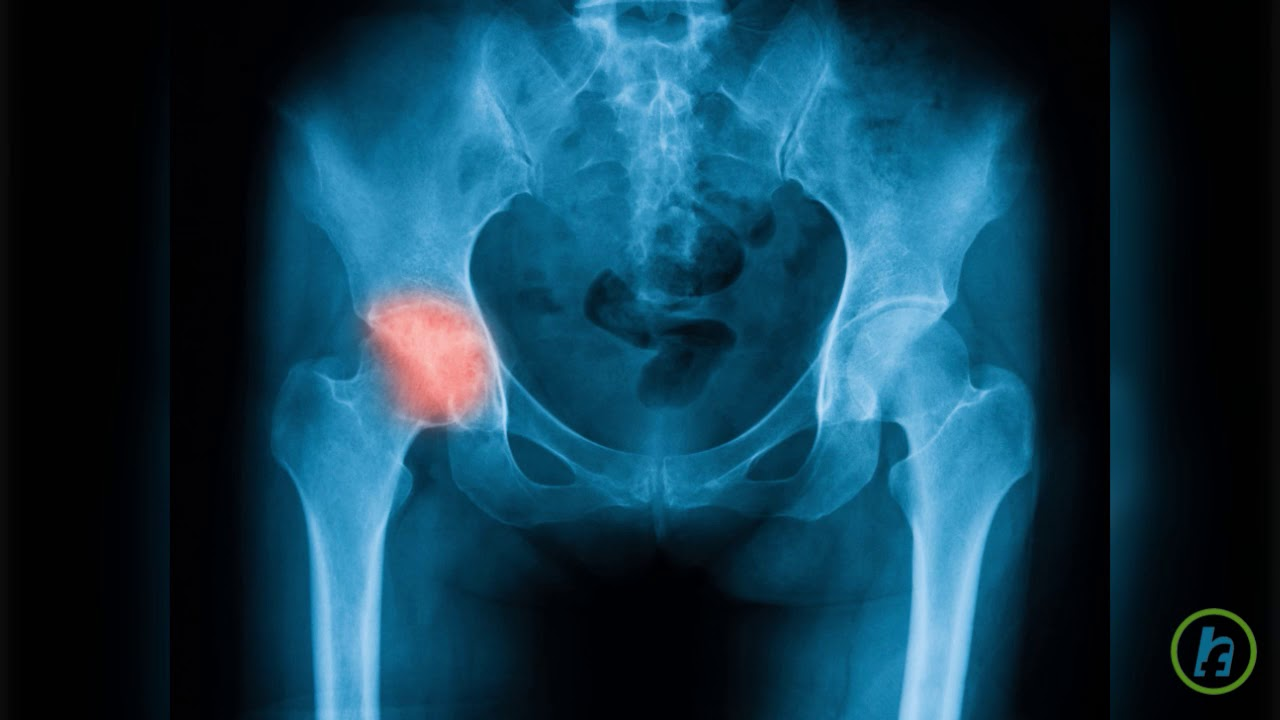 dureri de șold până seara deformarea durerii articulației piciorului