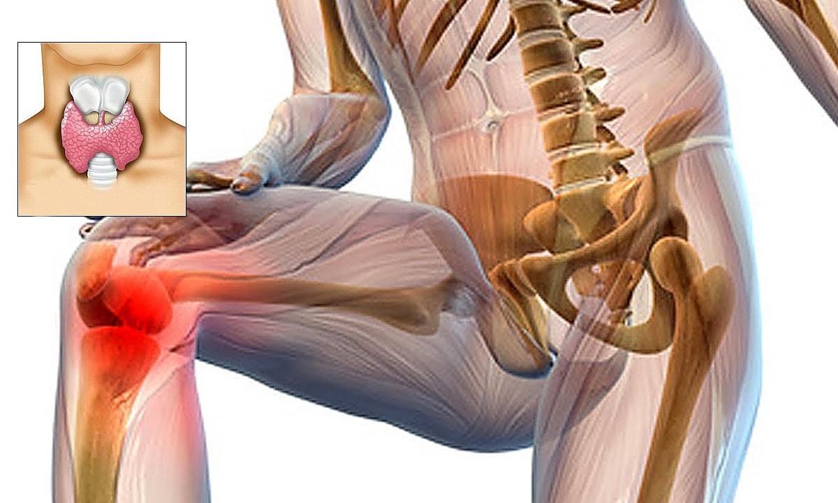 neurologie și dureri articulare