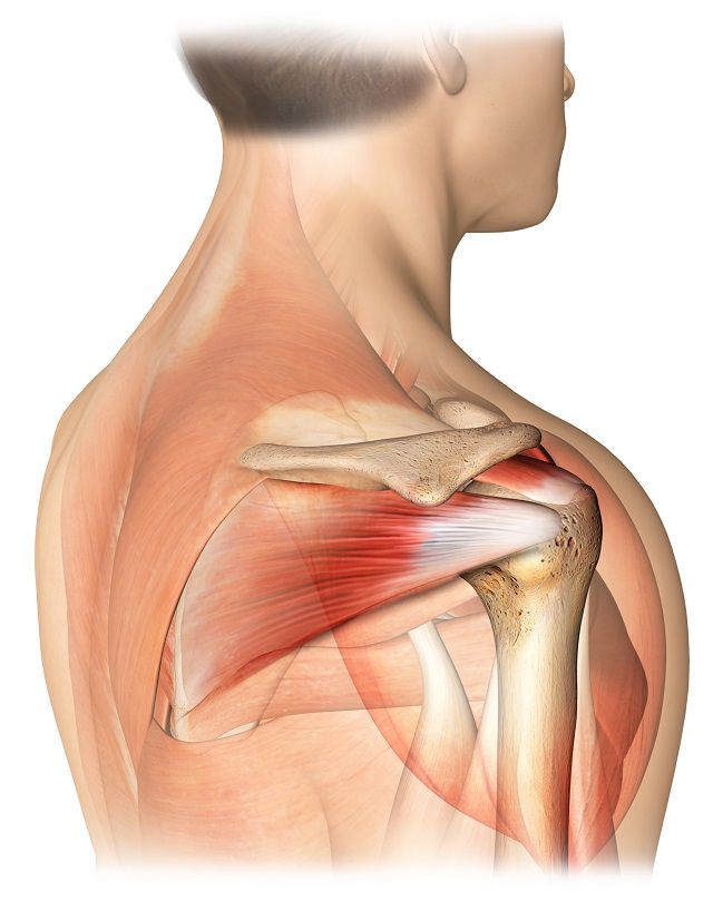 Repararea tendoanelor la umăr reumatism dureri de articulații