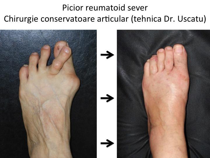 artrita reumatoidă deformarea degetelor de la nivelul picioarelor tratamentul articular la șoimi