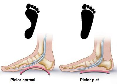 boli ale articulației piciorului și gleznei afine și boli articulare