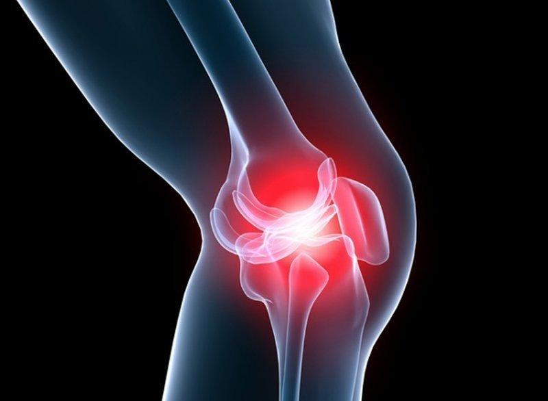 tratamentul artrozei alflutopului articulației genunchiului creșterea durerii articulare a hemoglobinei