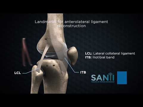 unguente pentru îmbinări cu sulf crunch tratament dureri articulare