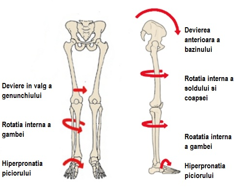 picioare plate și durere în articulațiile piciorului prepararea capsulelor de glucozamină