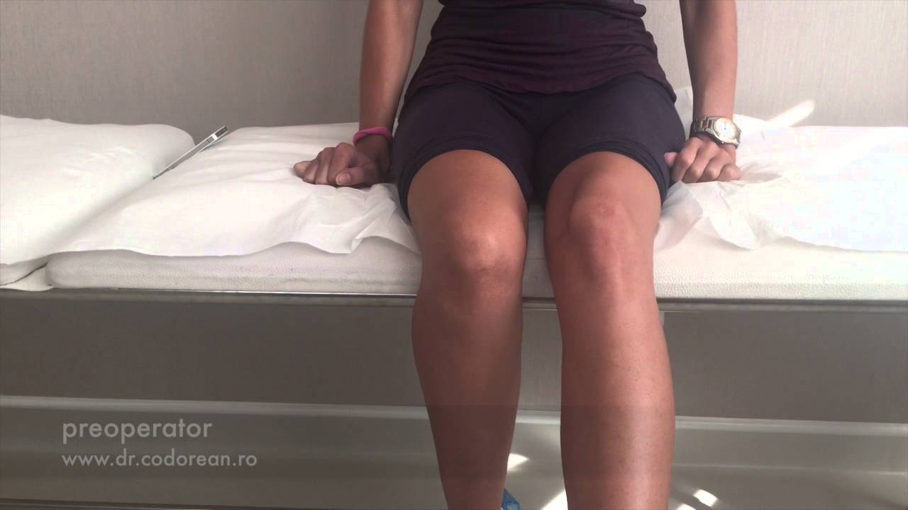 fugi cu dureri articulare durere în ligamentul articulației