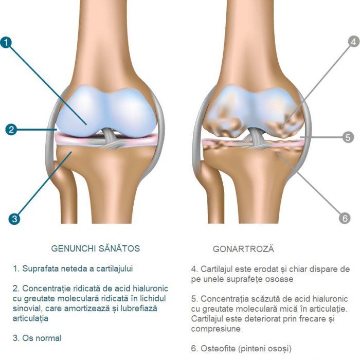 tratamentul artrozei în cel mai nou turlă metoda pentru tratarea durerilor articulare
