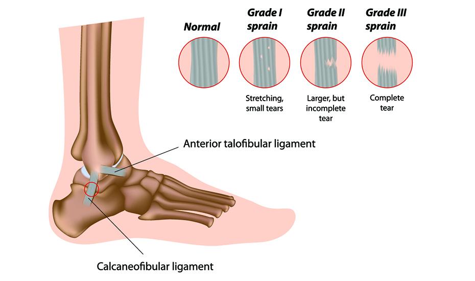 boli ale articulației piciorului și gleznei 28 de ani provoacă dureri articulare