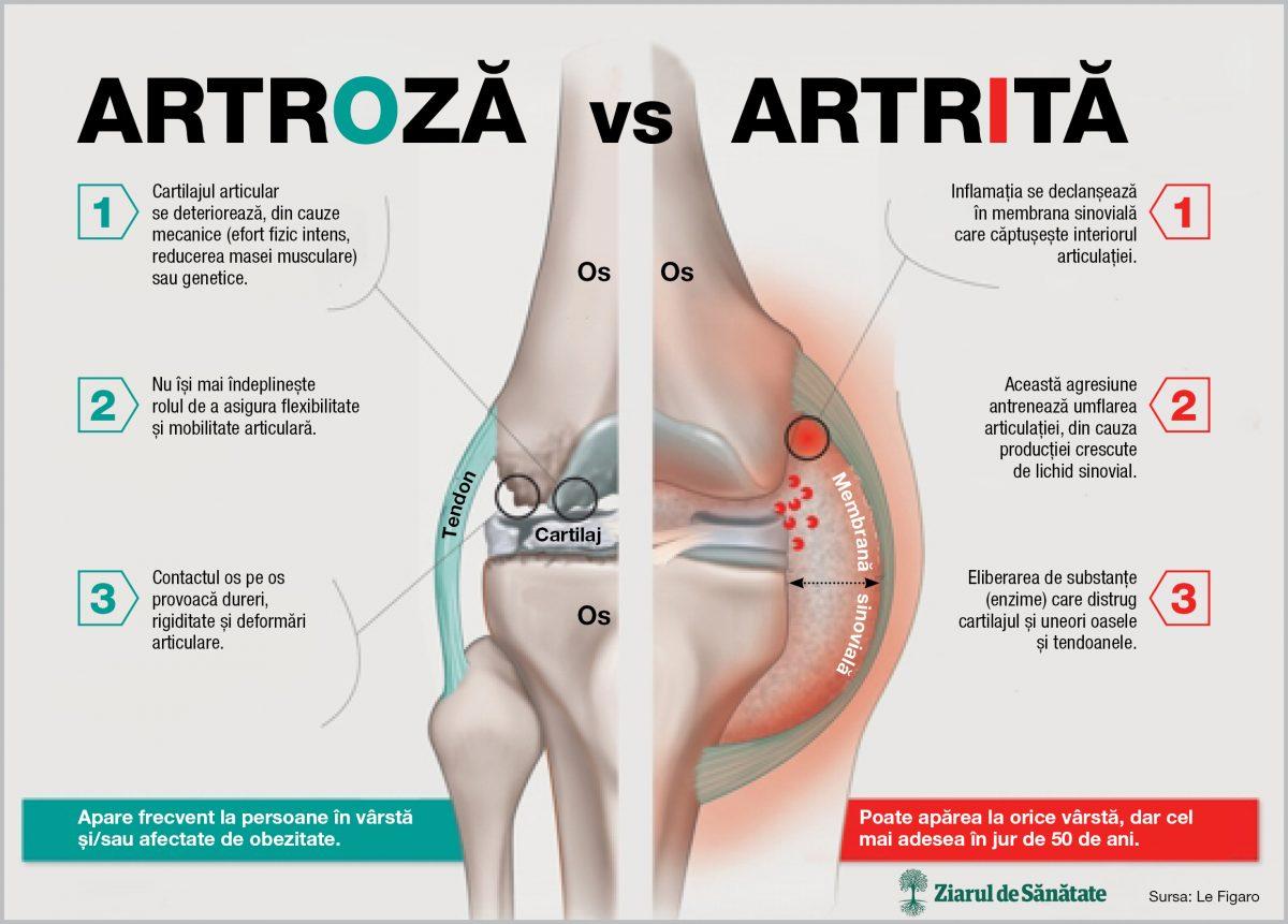 păcătuiește durerea articulară tratamentul articulației genunchiului după fractură
