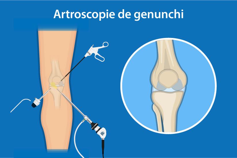 există dureri după înlocuirea genunchiului tratamentul articulațiilor uleiului de măsline