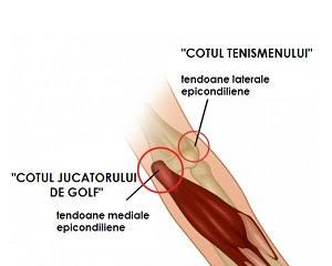 tratamentul fracturilor la încheietura mâinii