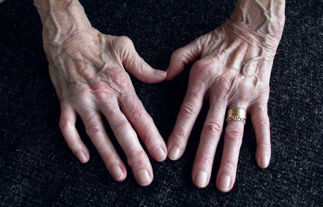 ameliorarea durerii pentru artroza genunchiului infecție articulară și tratament