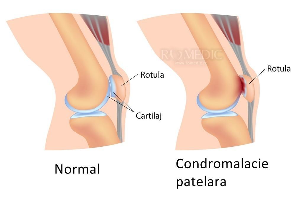 deteriorarea ligamentelor laterale interne ale articulației genunchiului patologia meniscului tratamentului articulației genunchiului