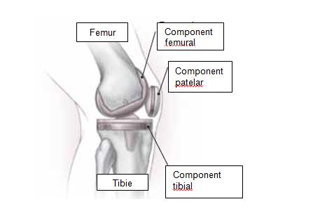 există dureri după înlocuirea genunchiului dureri articulare insuficiență hormonală