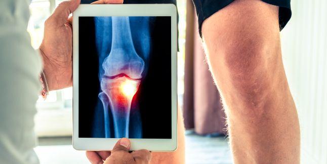 Recuperare genunchi