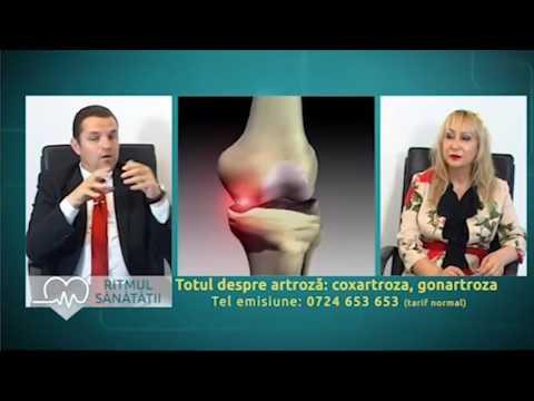 gelatină în tratamentul recenziilor de artroză