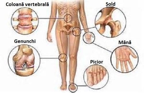 exerciții terapeutice pentru durerile articulare