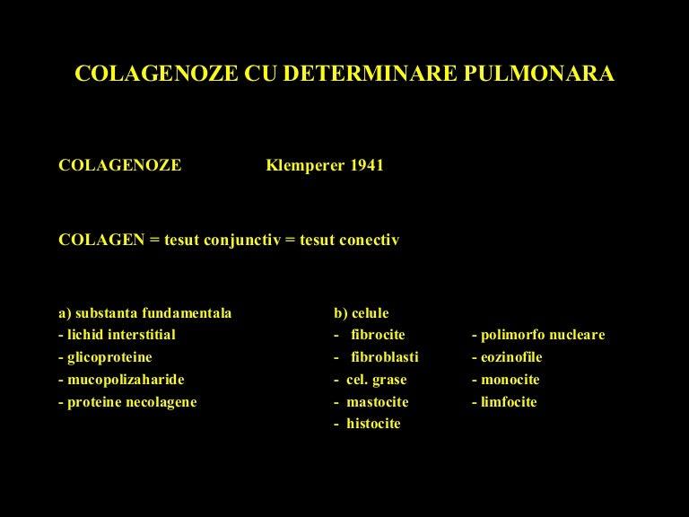 boli de țesut conjunctiv sistemic artrită multiplă dureri articulare cu extensie de flexie