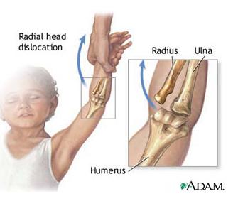 durerea articulară a cotului crampe mâinile