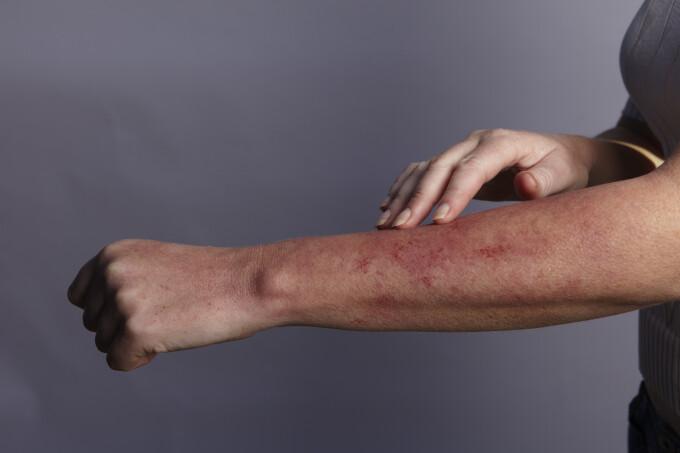 dureri de picioare articulații umflate articulații de artrită frecventă