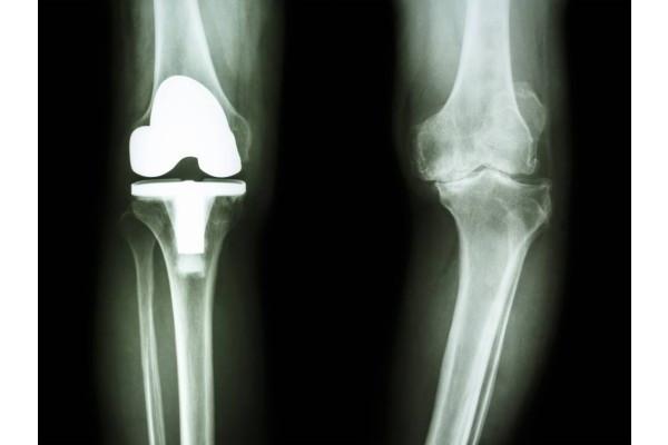 garnitură pentru tratamentul artrozei genunchiului