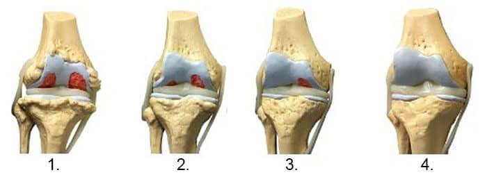 gel sau unguent pentru osteochondroză