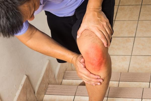 alergând cu durere în articulațiile genunchiului fractură de istoric medical la genunchi