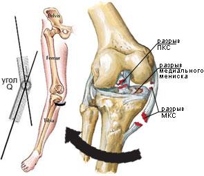 deteriorarea ligamentului anterior al genunchiului tratamentul ogulov al artrozei