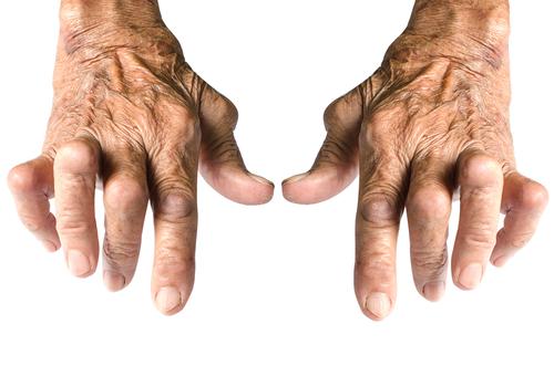 artroza tratamentului cu peria tratament articular skipofit