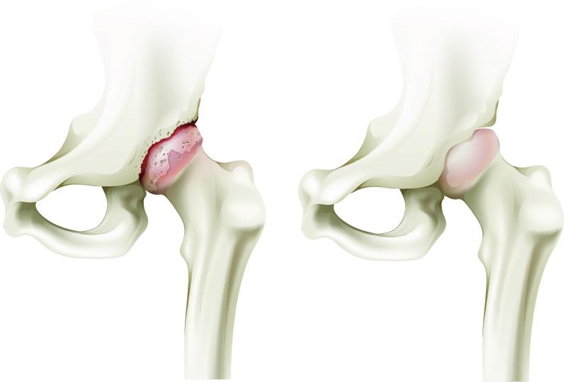 remedii pentru osteochondroza regiunii toracice deteriorarea meniscului extern al articulației genunchiului stâng
