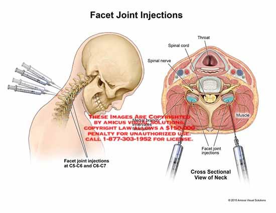 artroza articulațiilor necovertrale c5 c6 articulația genunchiului uman