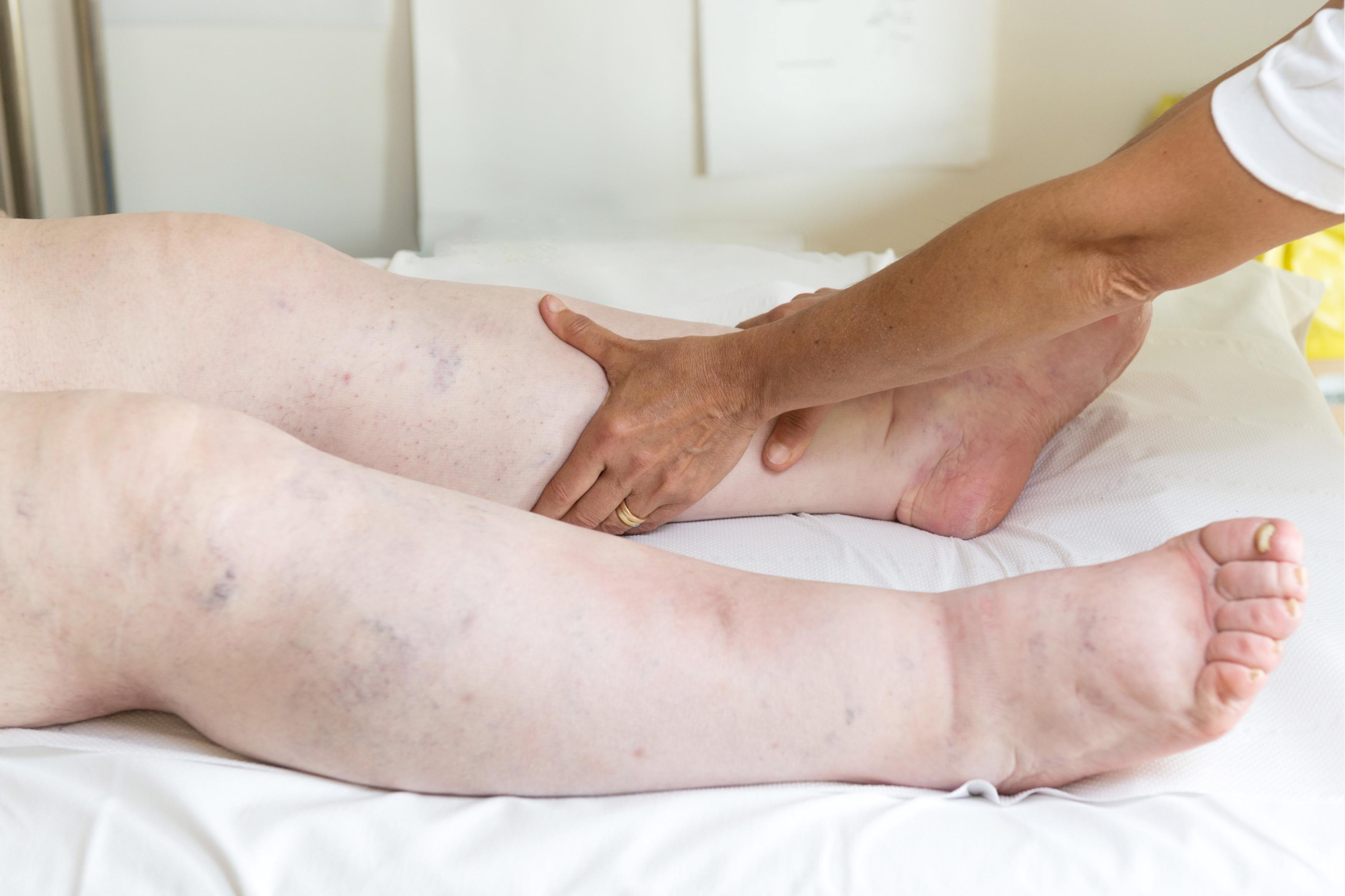 umflarea picioarelor din cauza rinichilor