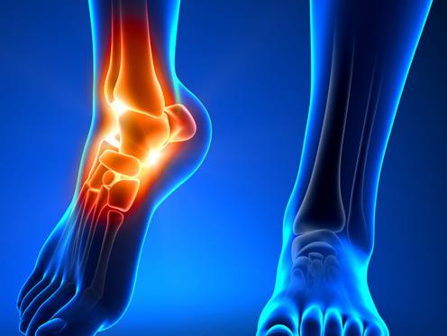 Deteriorarea ligamentelor gleznei este - Entorsa de Gleznă