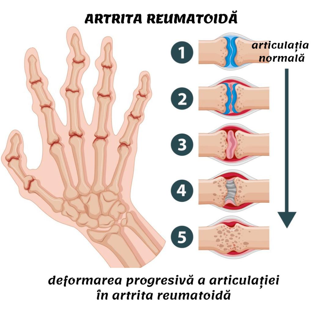 Durerea în articulațiile întregului corp provoacă
