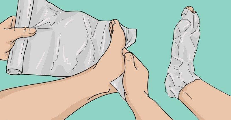 inflamația articulațiilor tratamentului mâinilor