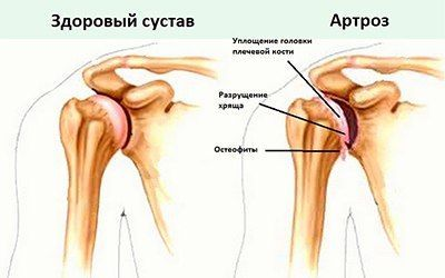 piroxicam pentru recenzii ale durerilor articulare