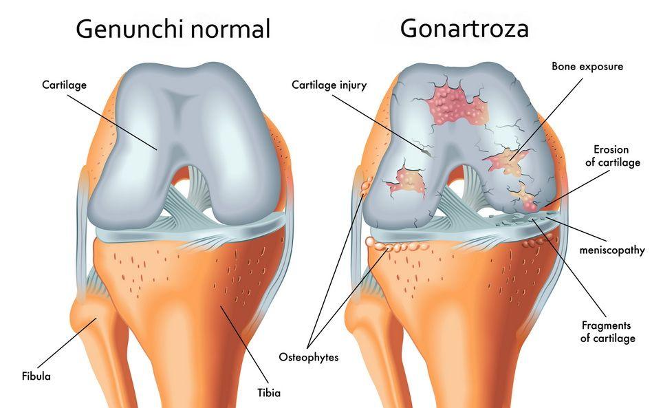 îngrijirea articulațiilor genunchiului