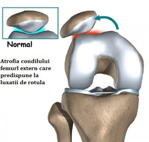 condromalacia simptomelor și tratamentului genunchiului