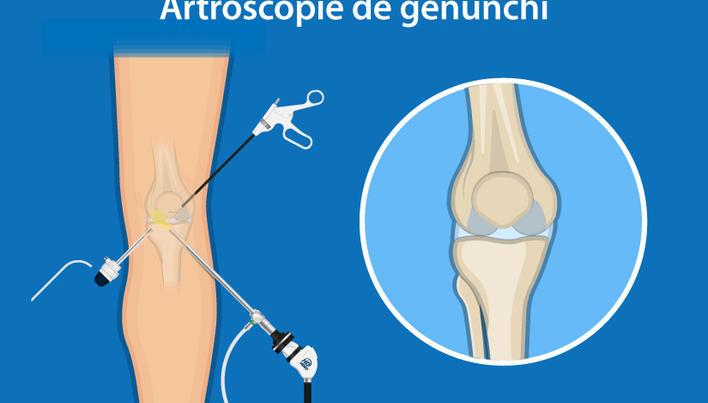 artroza articulațiilor gleznei cum se tratează
