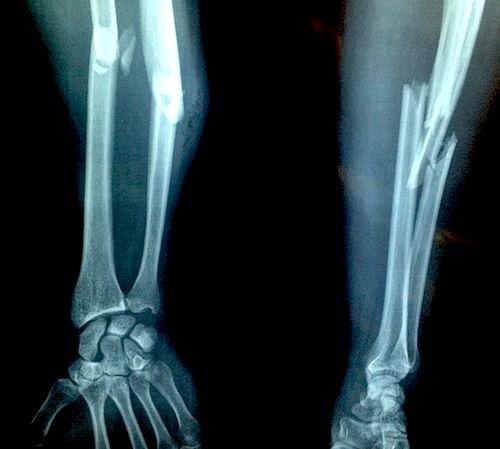 boli ale oaselor și articulațiilor mâinilor artroza tratamentului la baie de genunchi