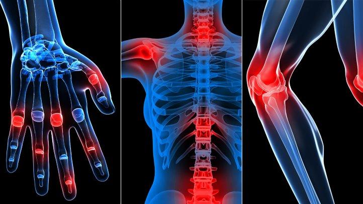Afla totul despre artroza: Simptome, tipuri, diagnostic si tratament   fotovideoconstanta.ro