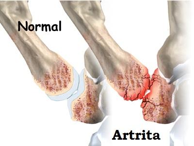 durere în articulația piciorului degetul mare medicament pentru reparația articulațiilor genunchiului
