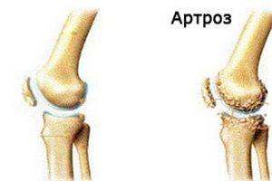 tratamentul poliartritei umărului dureri articulare și musculare sub stres
