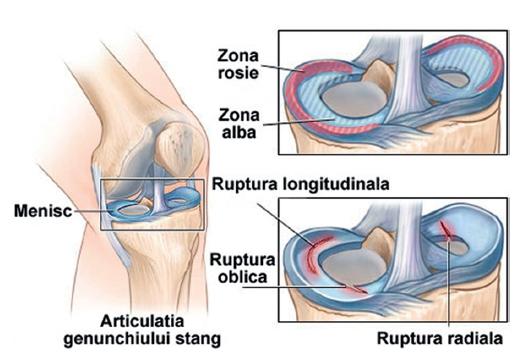 dureri articulare la picior și umăr cum să tratezi artroza nevertebrală