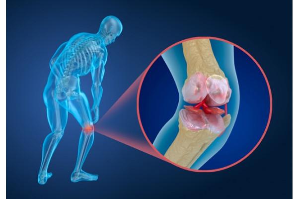 artroza tratamentului și nutriției genunchiului