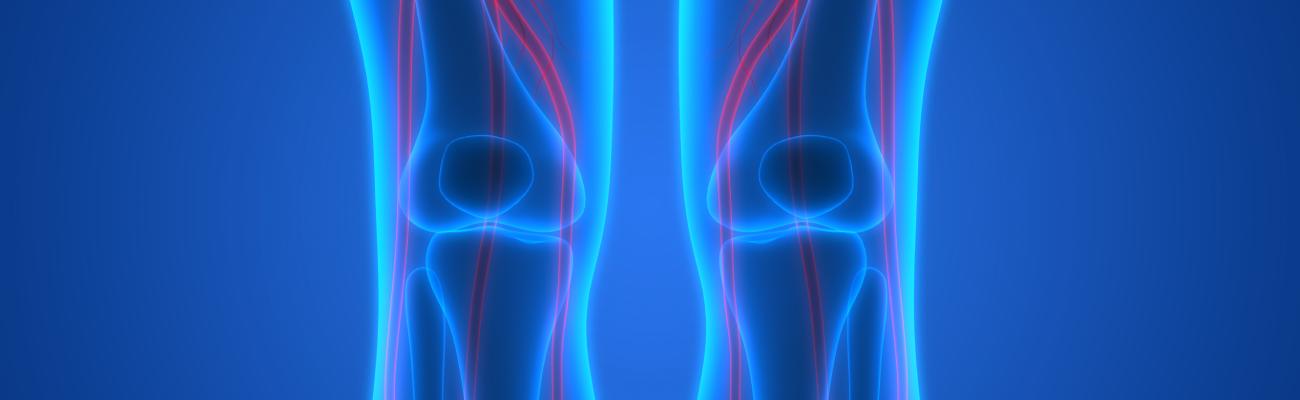 cloramfenicol pentru boala articulară artroza genunchiului cu 3 grade decât a trata