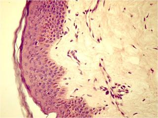 artroza tratamentului articular al umărului ce este artroza în articulațiile genunchiului