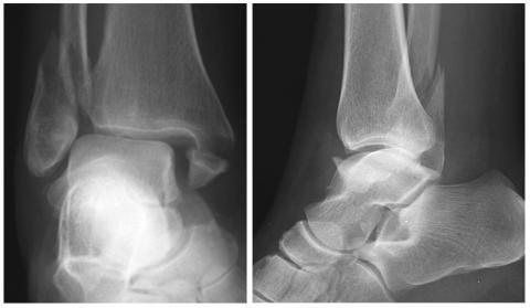 articulații glucozamină condroitină deformarea artrozei articulației genunchiului cum se tratează