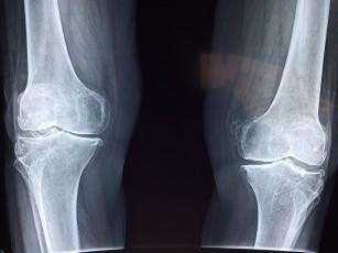 inflamația artritei genunchiului artroza tratamentului chirurgical al piciorului