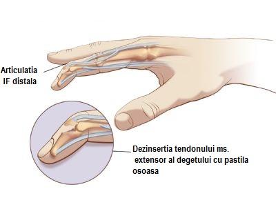 medicamente eficiente în tratamentul artrozei articulare tratament comun cu lazar